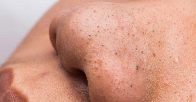punti neri sintomi cause rimedi sintomi